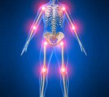 Qual è la differenza fra artrite e artrosi?